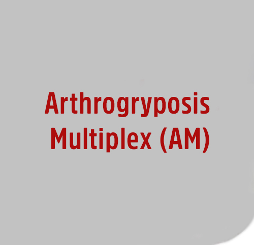 Arthrogryposis-Multiplex-AM
