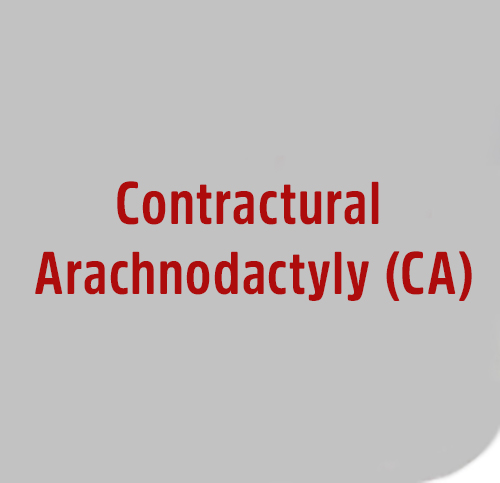 Contractural-Arachnodactyly-CA